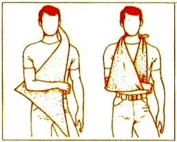 bandage avant bras echarpe
